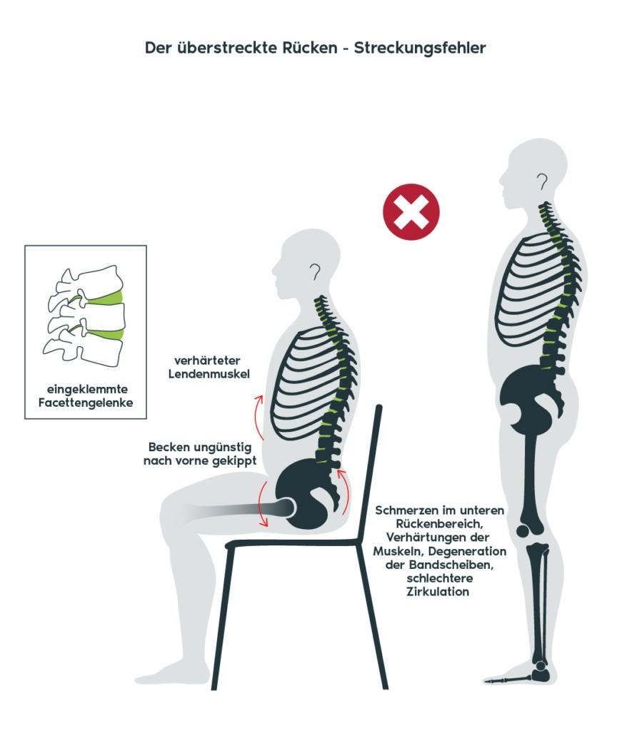 Physio-Freudensprung_Streckungsfehler-Grafik-n