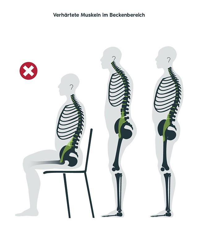 Physio-Freudensprung_Verhaertete-Musekeln-Beckenbereich